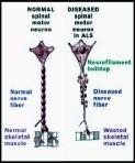 motor neuron 3